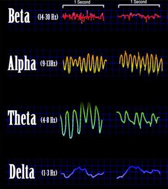 Beta, Alpha, Theta und Delta Wellen